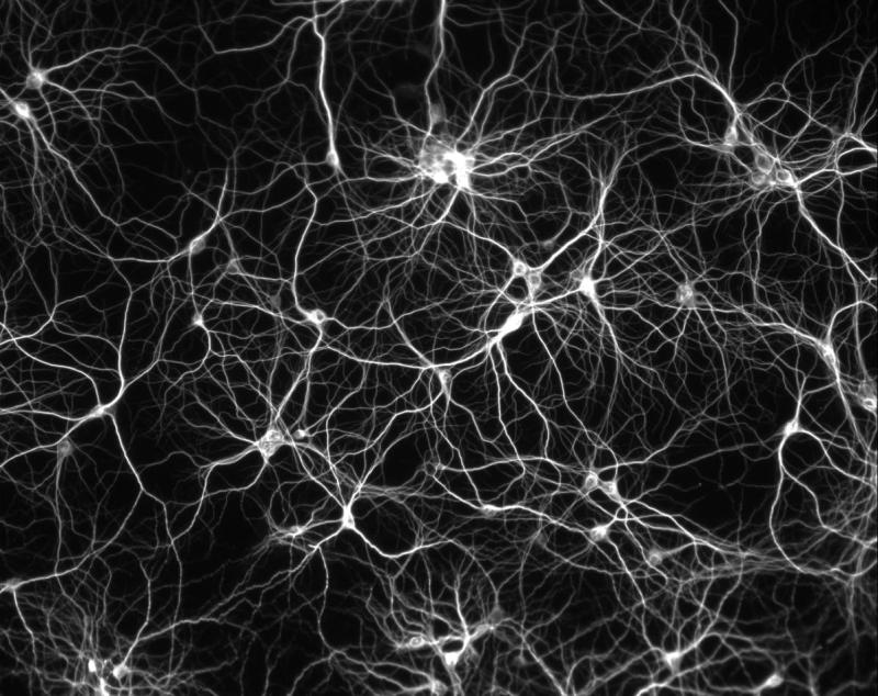 neurons-firing-connections-image_culture_800px
